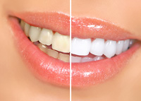 Teeth Whitening Hasbrouck Heights, NJ